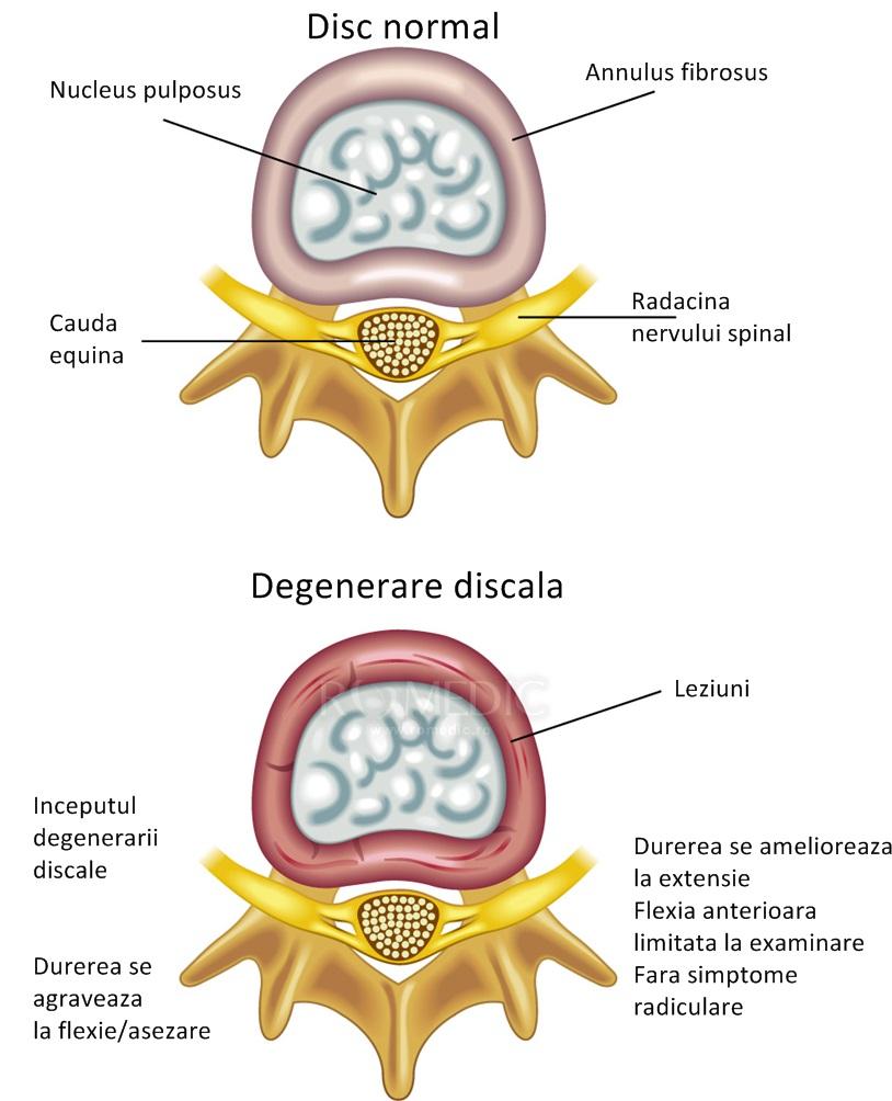 Boala degenerativa a articulatiilor