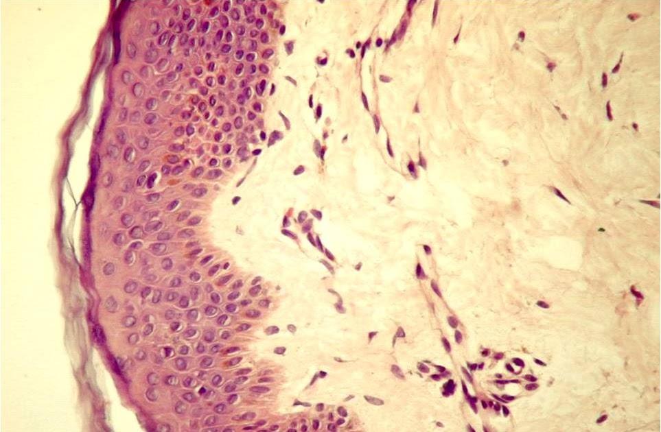 preparat de histologie a țesutului conjunctiv fibros liber