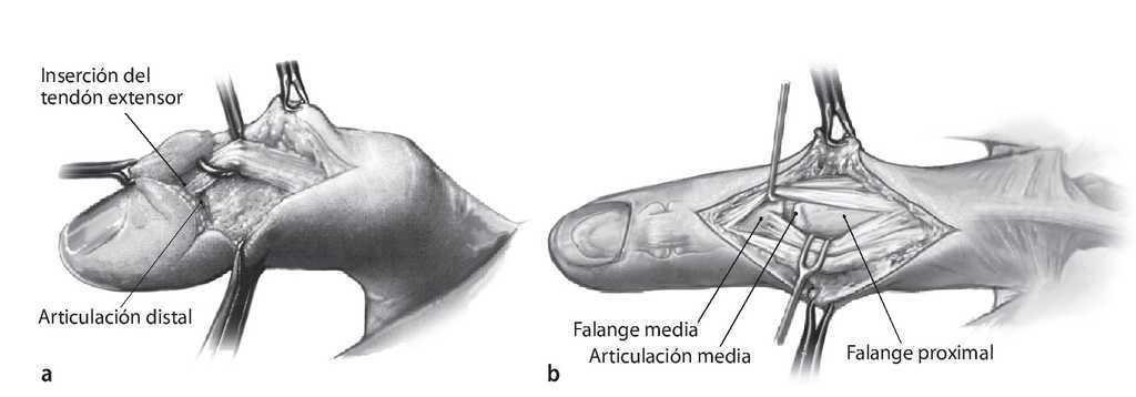 inflamație articulară pe medicația degetelor