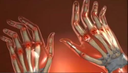 cum să tratezi artrita reumatoidă și poliartrita deteriorarea parțială a articulației cotului