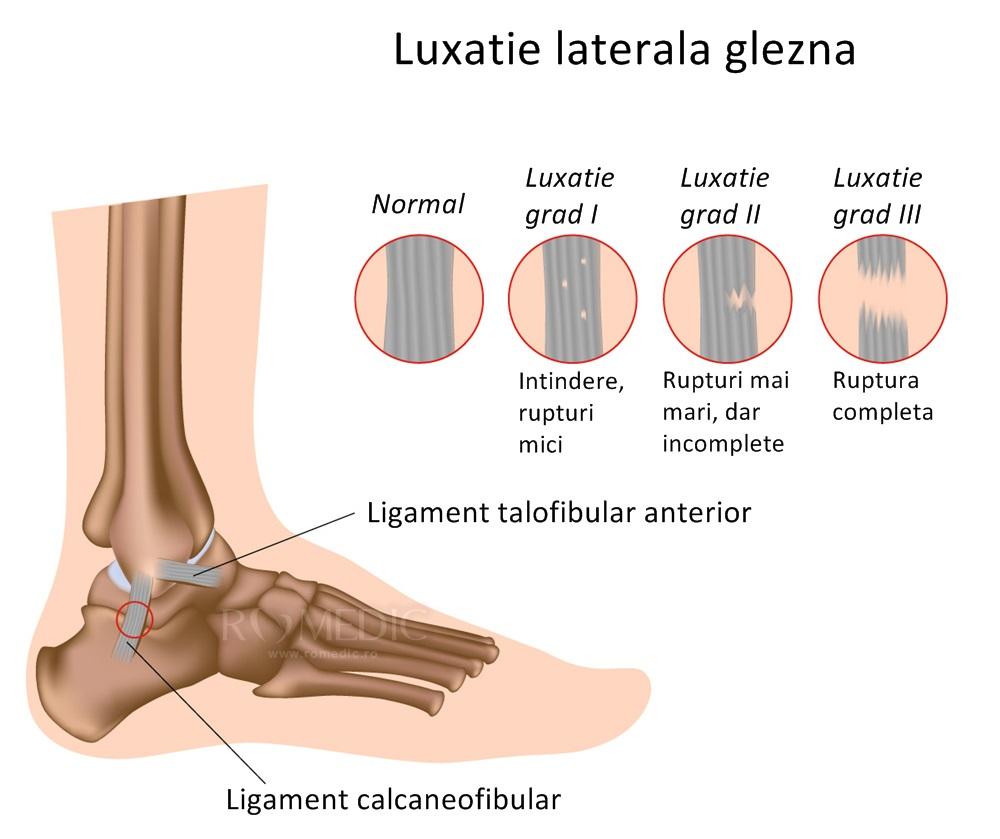 articulația gleznei care se vindecă