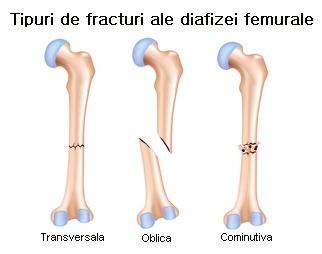 Perioada de tratament a fracturilor de șold