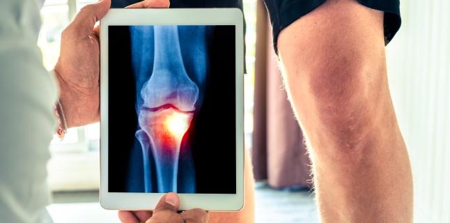 Osteoartroza genunchiului decât a trata, Osteoartrita genunchiului