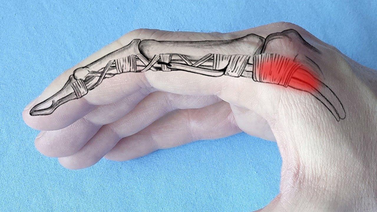 bump pe articulația tratamentului degetelor boli ale articulațiilor și țesutului conjunctiv