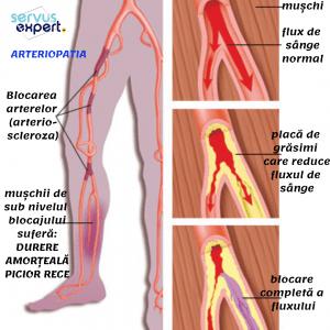 articulațiile și venele la nivelul picioarelor doare