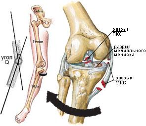 raport de leziuni la genunchi