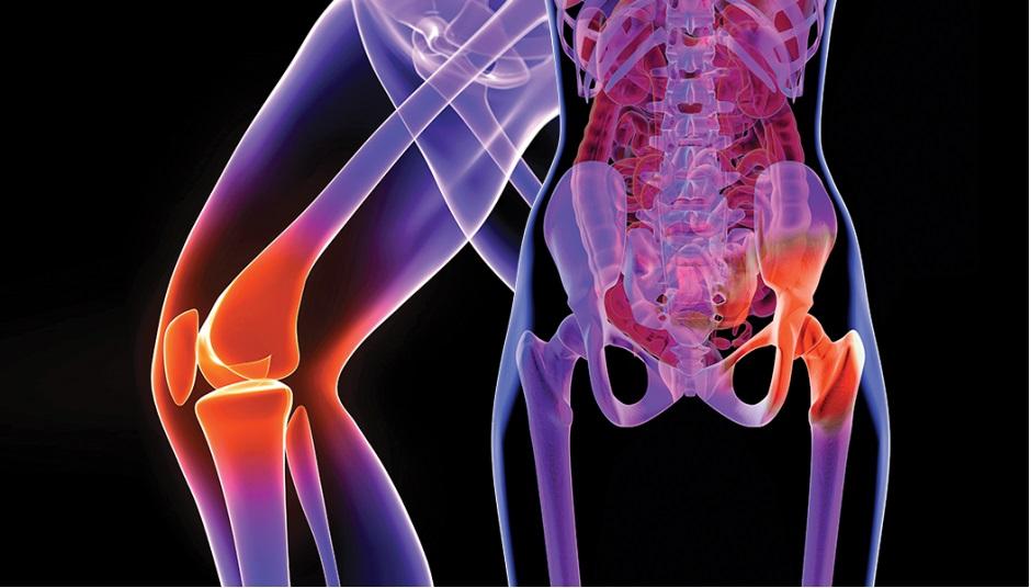 artrita articulației cotului