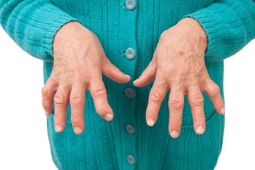 dureri articulare și artrită umflătoare