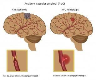 clinica de tratament cu artroza șoldului unguent pentru durere în articulațiile mâinii