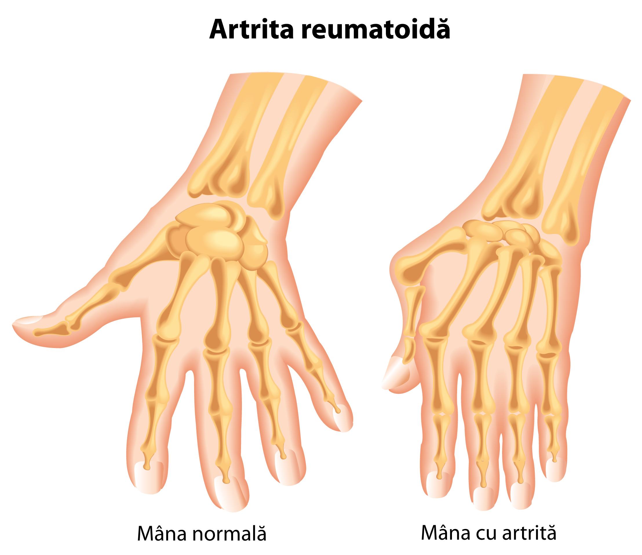umflarea articulației degetelor