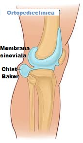 artroza becker chist tratament