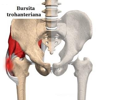 durere în bursita articulației șoldului