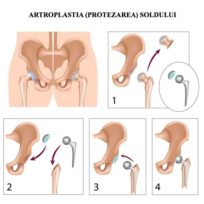 tratamentul conservator al articulațiilor șoldului dureri articulare sifilitice