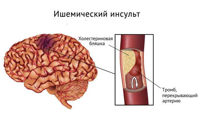 articulațiilor după un accident vascular cerebral