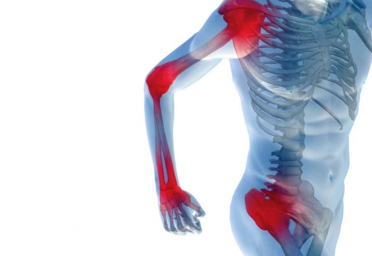 dureri articulare de fitness