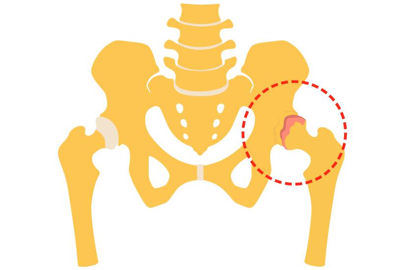Diferența de artroză față de coxartroza articulației șoldului
