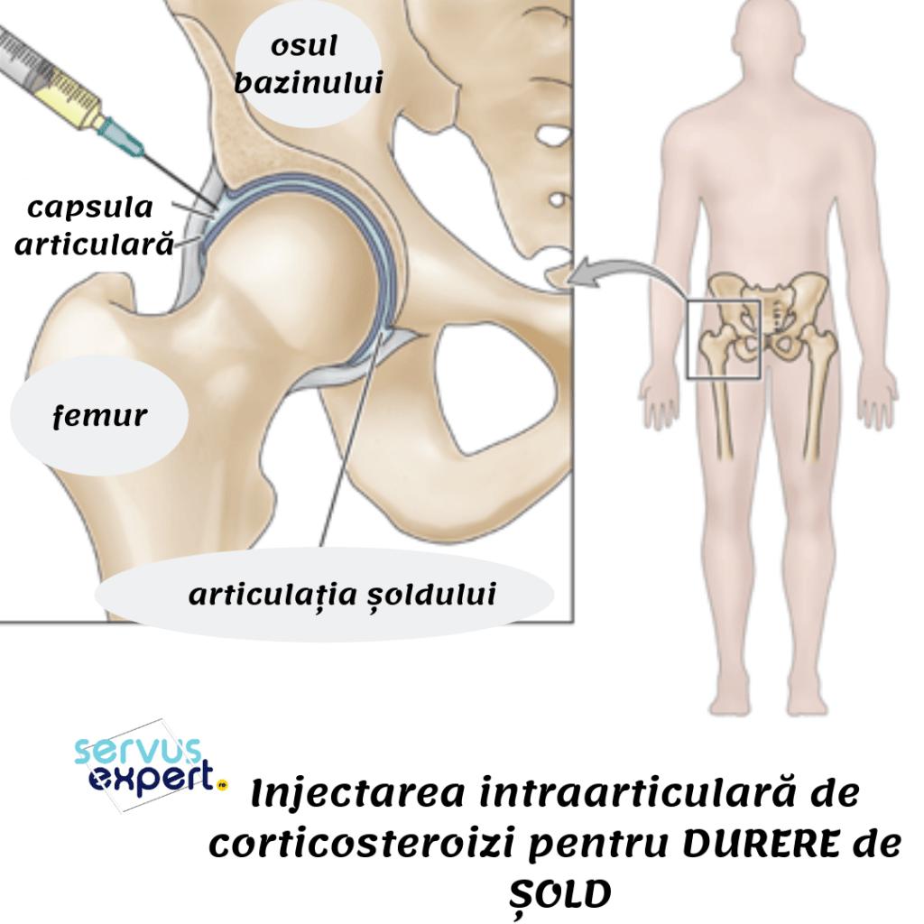 unguent anestezic pentru articulații și mușchi