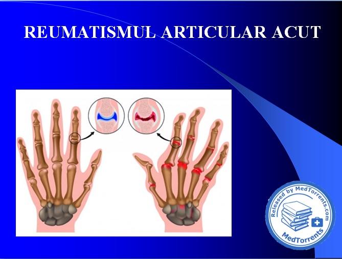 reumatism articular culcat pe lateral doare articulația șoldului