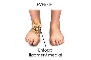 deteriorarea ligamentelor gleznei cum se bandajează
