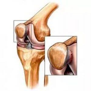 Stimularea procesului de regenerare a țesuturilor cartilaginoase. Plasmolifting