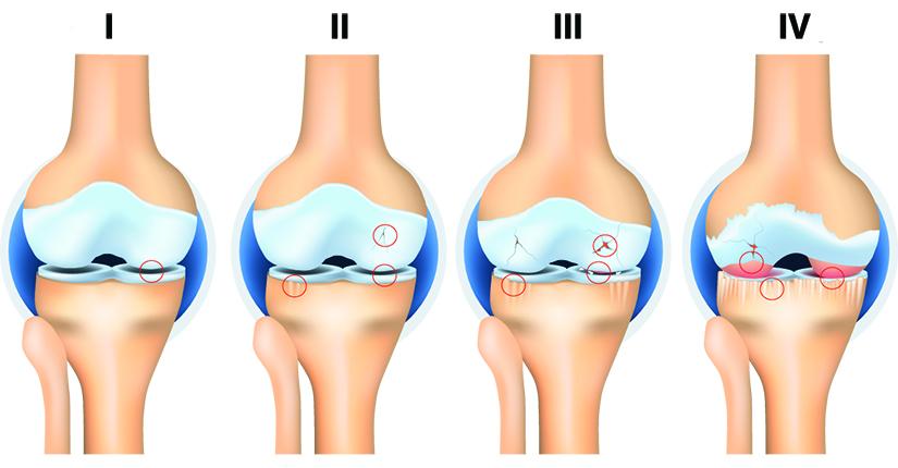 stadiile artrozei genunchiului