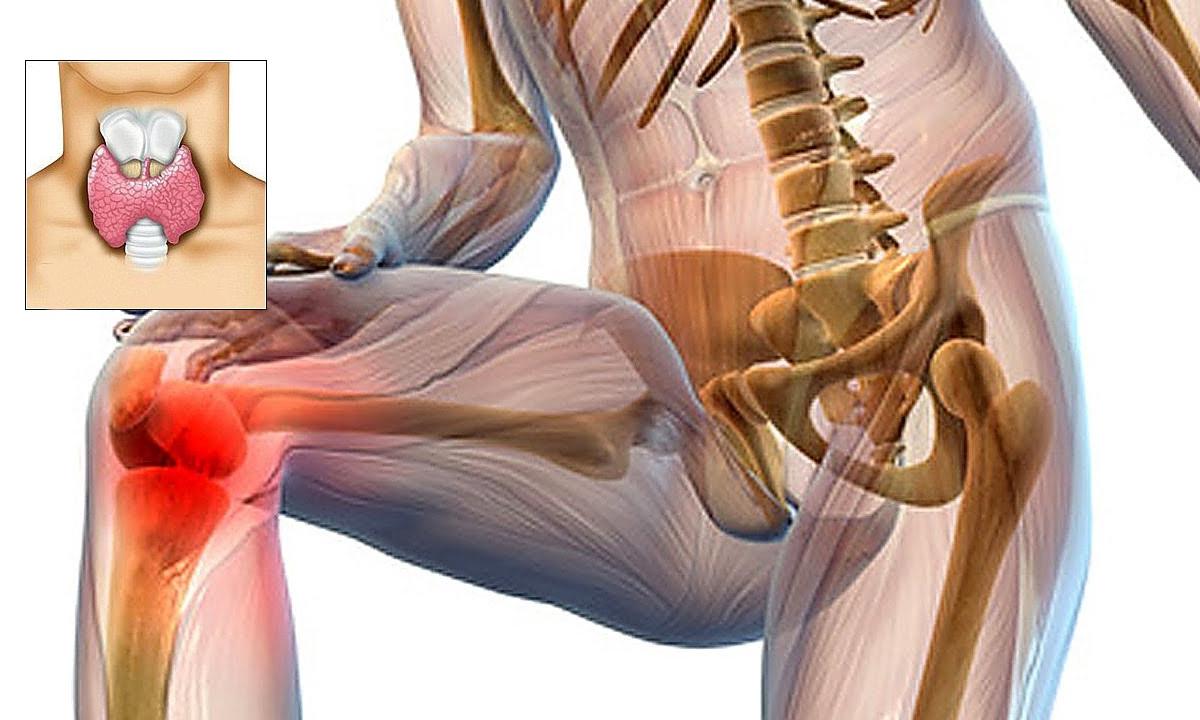 alimentație adecvată pentru durerile articulare