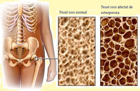 articulațiile suferă de osteoporoză