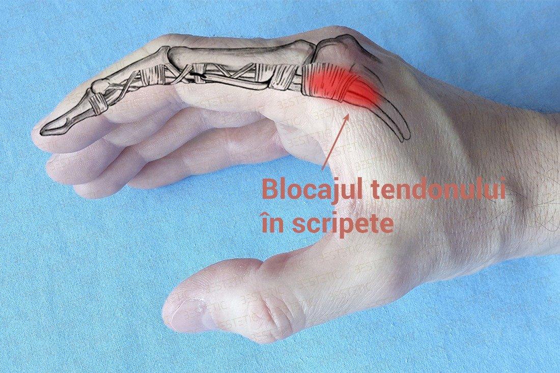 tratament dureros la nivelul articulațiilor degetului mare medicamente articulare turcești