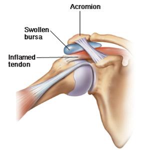 Unguent pentru tratamentul bursitei articulației umărului - Formular de căutare