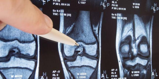 Tratamentul Osteoporozei » LaurusMedical - hemoroizi, varice, dermatologie, gastroenterologie