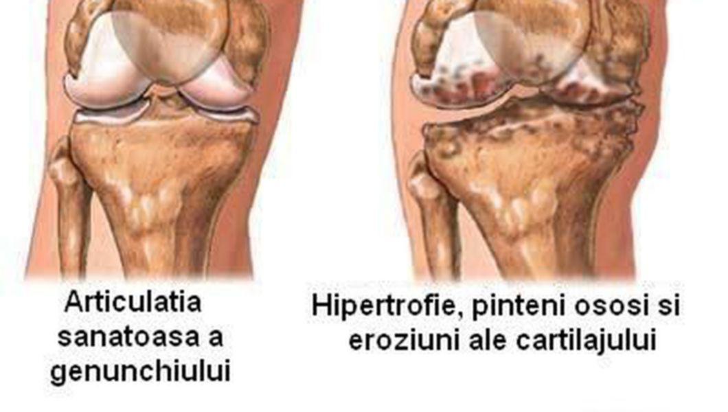 Am artrita genunchiului artroza articulațiilor fațete ale tratamentului coloanei vertebrale