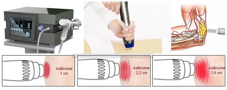 Terapia cu valuri de șoc a articulațiilor: indicații, contraindicații, recenzii - Artrită November