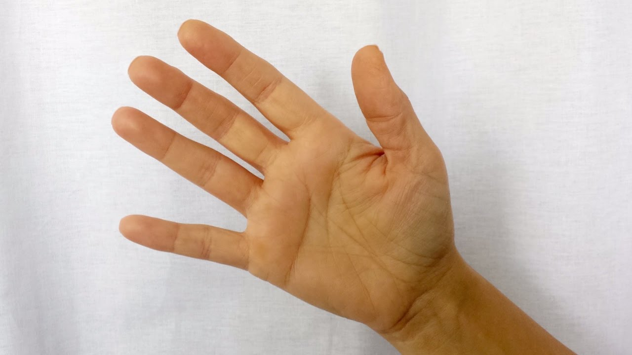 amorțeală în artrită