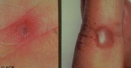 inflamație acută purulentă a articulațiilor lichid în articulația cotului cu artrita reumatoidă