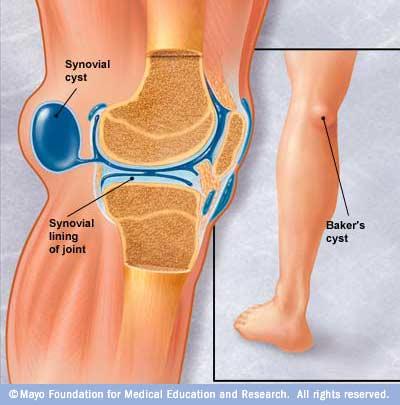 durere dureroasă în spatele genunchiului
