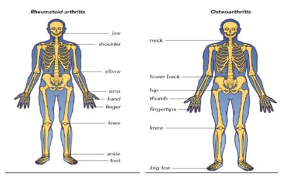 Clasificarea bolii articulare, Clasificarea bolilor inflamatorii articulare