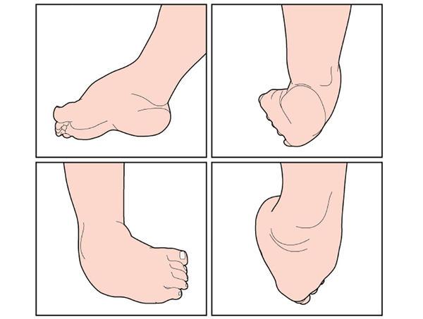 cum să tratezi artroza șoldului și a genunchiului tratamentul artrozei genunchiului în clinicile din Rusia