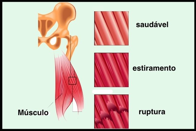 preparate pentru articulații și teraflex cartilaj