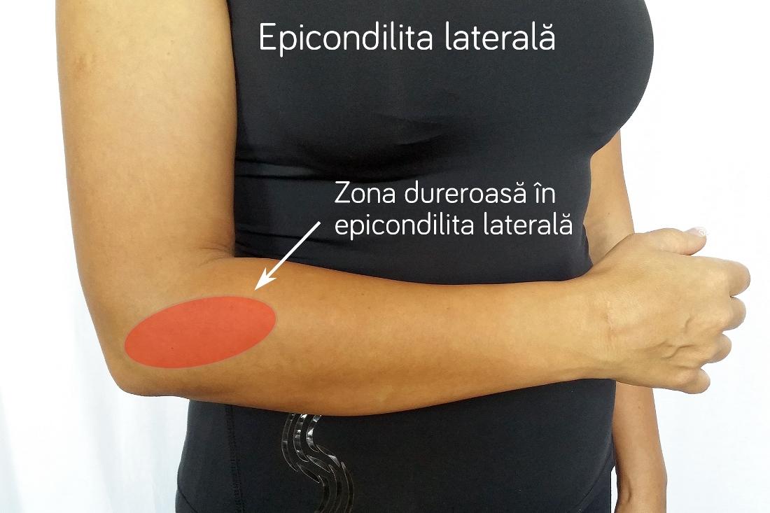 cum se tratează epicondilita laterală tratament al artrozei articulare alflutop