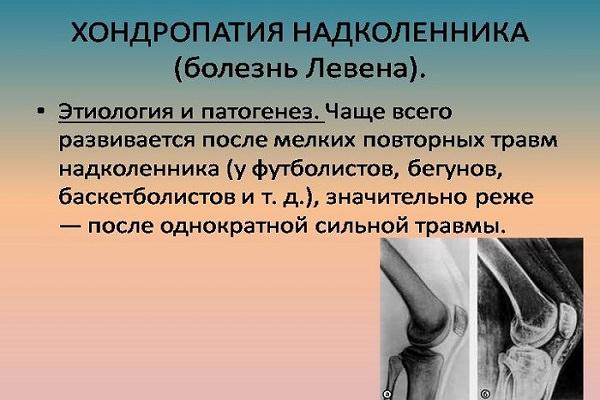 articulațiile mâinii unei persoane rănite durerea în articulațiile mari cauzele și tratamentul