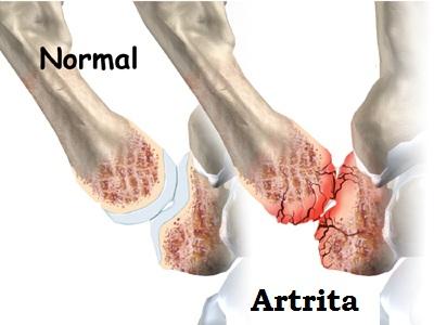 artrita articulației carpo-metacarpiene a degetului mare remediu pentru durerea articulațiilor cotului