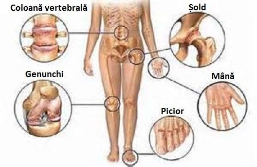 Rețete comprese pentru dureri articulare,