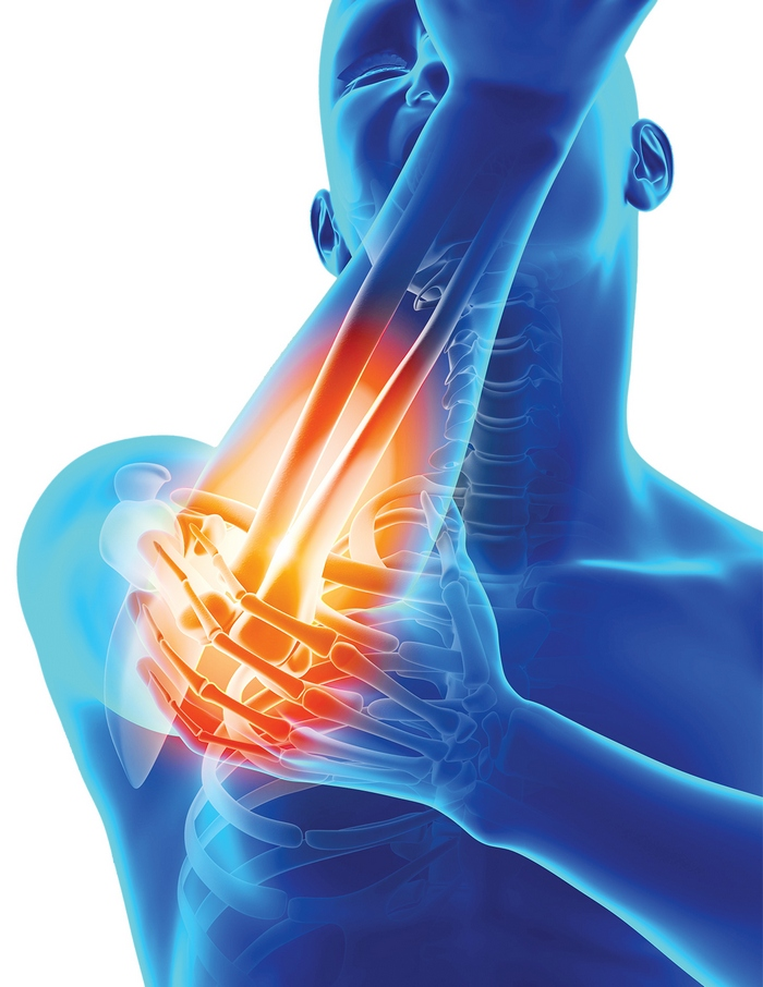 aparat pentru durere în articulațiile mâinilor