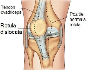 subluxarea genunchiului decât a trata