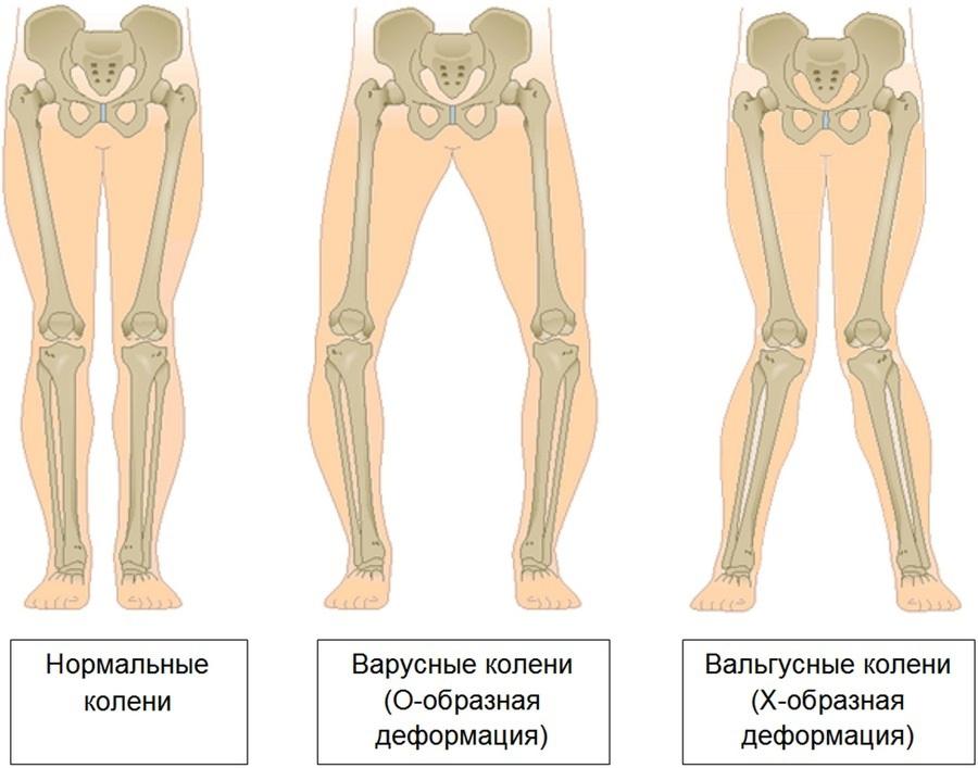 vitamine de la articulațiile picioarelor până la genunchi