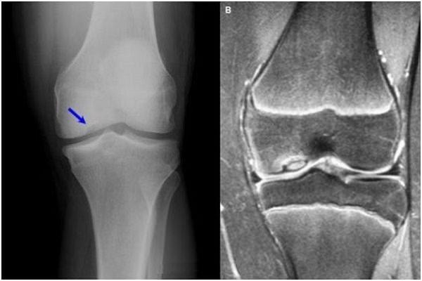 Deformarea artrozei articulațiilor genunchiului 1 2 grade. comun ulnară gimnastica artroze