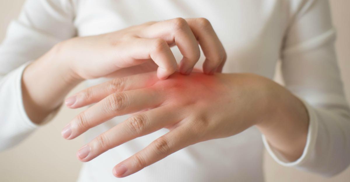 Рубрика: Dureri de spate - Dureri articulare din urticarie