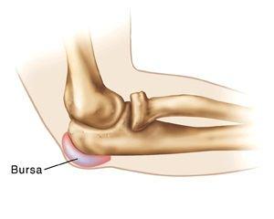 tratamentul bursitei purulente a articulației cotului