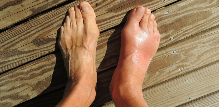 leac pentru durerile de gleznă Tratamentul cu artroza diadensă