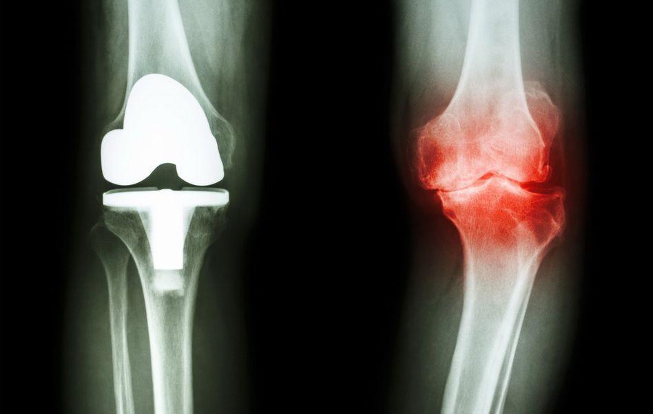 UHF pentru artroza genunchiului